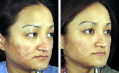 Acne Scarring Needling Picture B4 & After