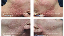 quita-lopez-md-before-after-dermapen-treatments