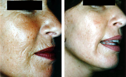 Before and After Collagen Induction