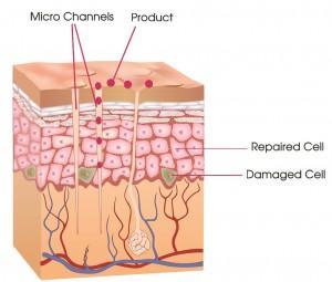 micro needling